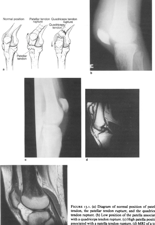 small resolution of  a diagram of normal position of patellar tendon the patellar
