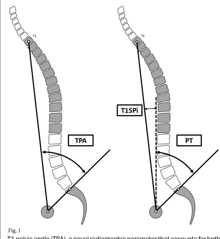 Figure 1 from TheT1 pelvic angle, a novel radiographic