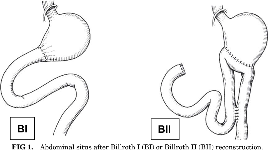 Figure 1 from Preserving duodenal passage for bone