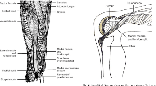 small resolution of reconstruction of the knee extensor mechanism after chronic buttonhole deformity semantic scholar