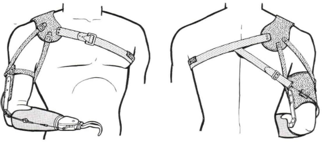 Figure 3 from Harness patterns for upper-extremity