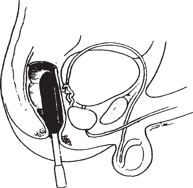 Penile vibratory stimulation and electroejaculation in the