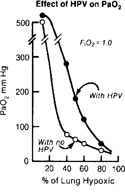 Figure 5.3 from Physiology of the Lateral Decubitus