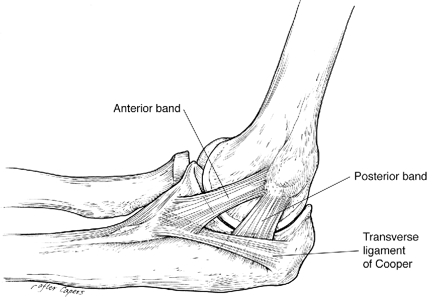 Figure 2 from Posterolateral rotatory instability of the