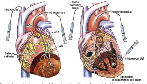 small resolution of routes of injections for cardiac cell therapy abbreviations cfx circumflex