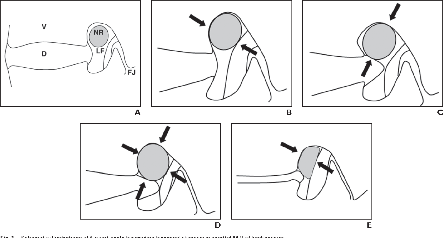 Figure 1 from A practical MRI grading system for lumbar