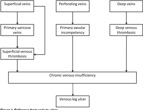 small resolution of figure i pathways from vein to ulcer