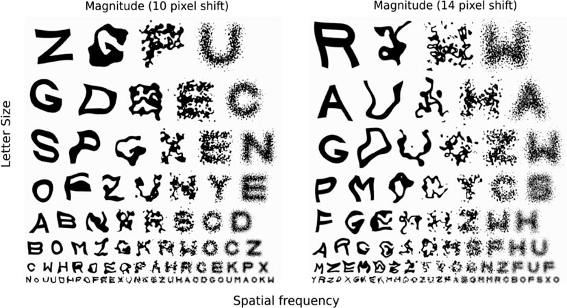 Figure 1 from Metamorphopsia and letter recognition