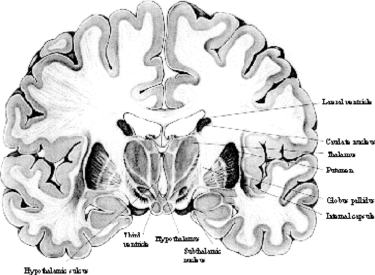 Figure 3.10 from Chapter 3 Magnetic Resonance Imaging of