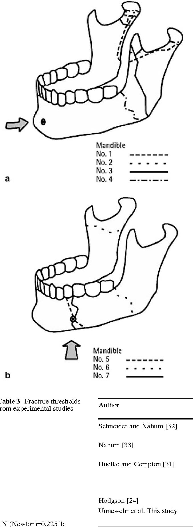 human mandible diagram 2005 subaru impreza radio wiring fracture properties of the semantic scholar