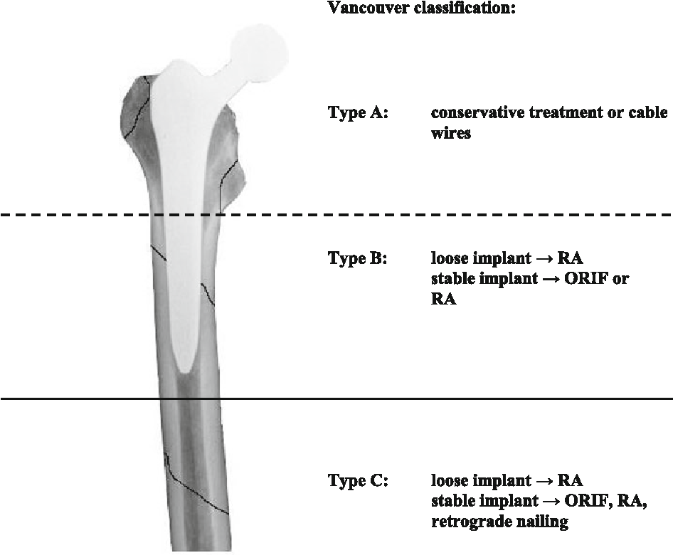 Figure 1 from Outcome after operative treatment of Vancouver type B1 and C periprosthetic femoral fractures: open reduction and internal fixation ...