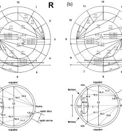 retinal fundus diagram upper and transverse cross section diagram [ 1388 x 1124 Pixel ]
