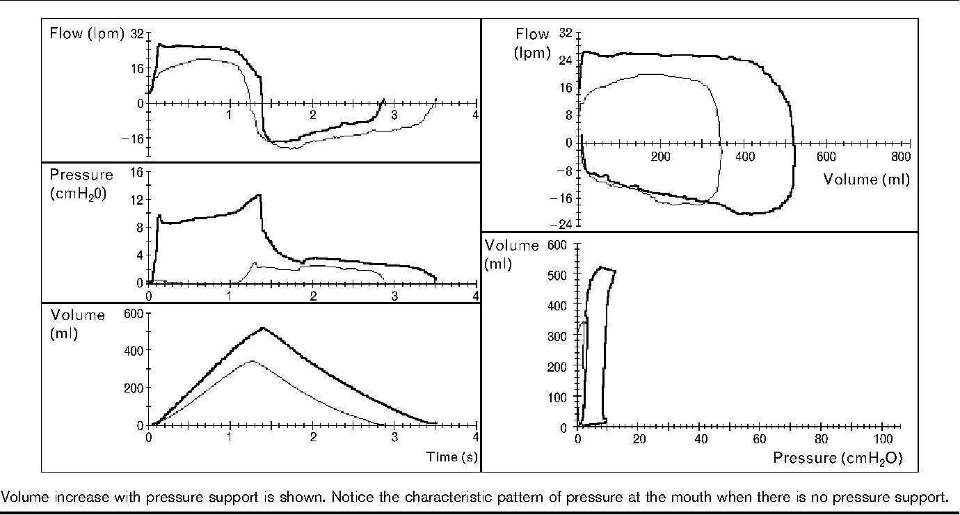 hight resolution of figure 4