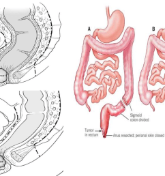 figure 6 abdominoperineal resection dashed lines are the resection margins 30  [ 1238 x 916 Pixel ]