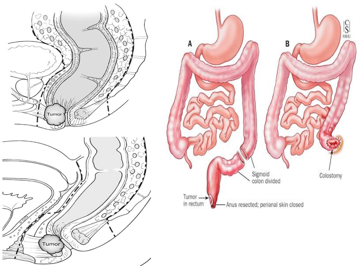 hight resolution of figure 6 abdominoperineal resection dashed lines are the resection margins 30