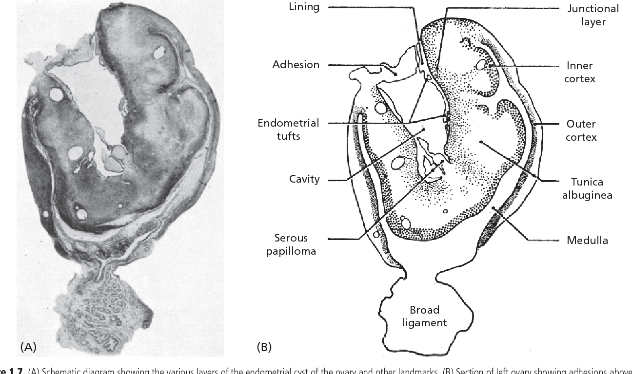 hight resolution of figure 1 7 a schematic diagram showing the various layers of the endometrial cyst of