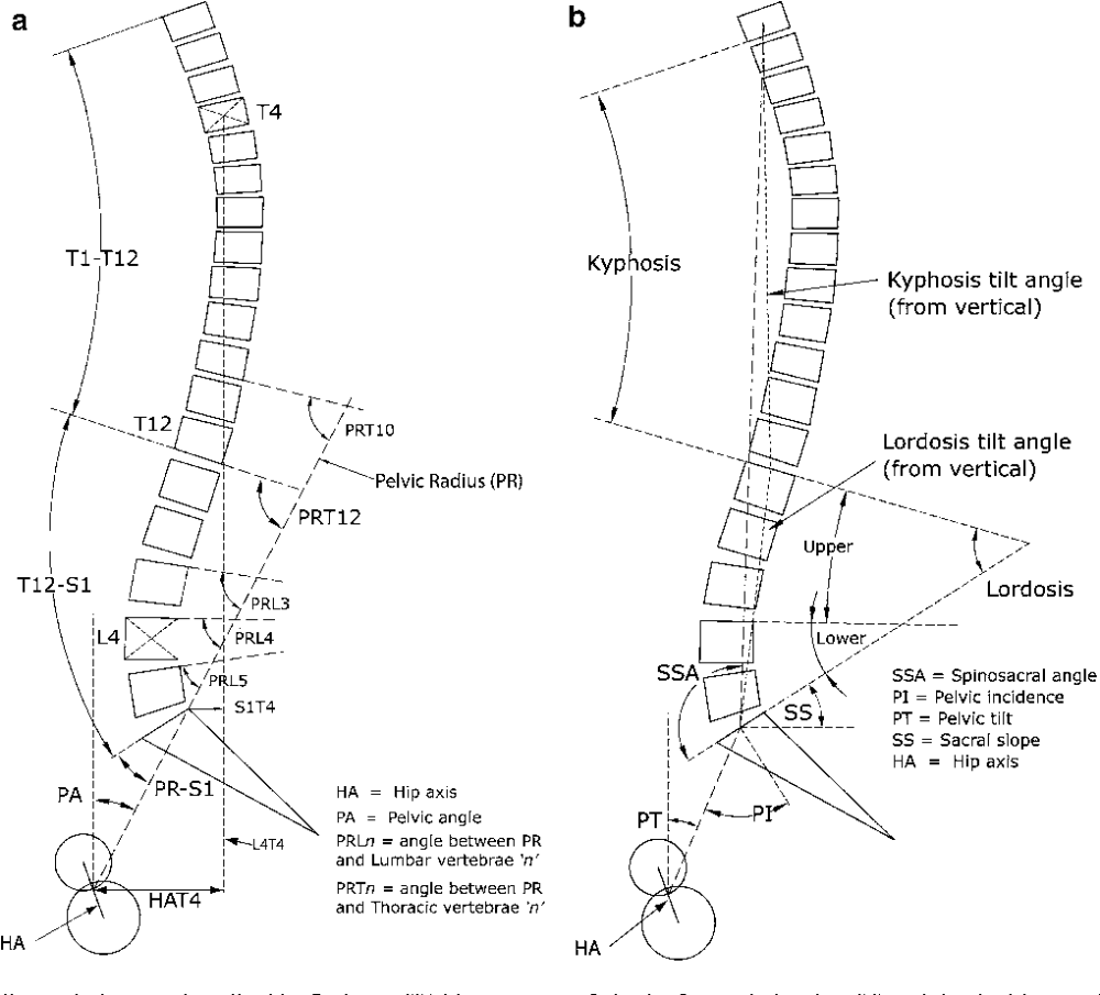 medium resolution of lumbo pelvic lordosis and the pelvic radius technique in the assessment of spinal sagittal balance strengths and caveats semantic scholar