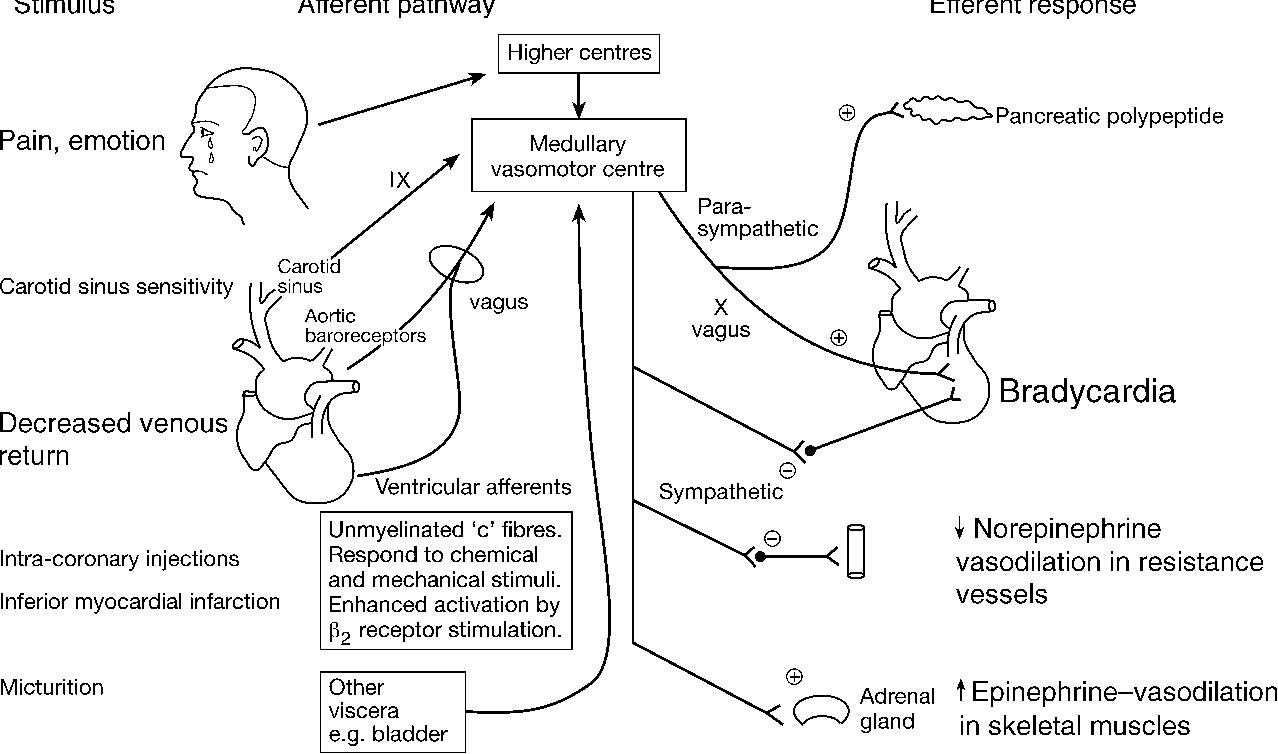 Figure 1 from Perioperative bradycardia and asystole ...