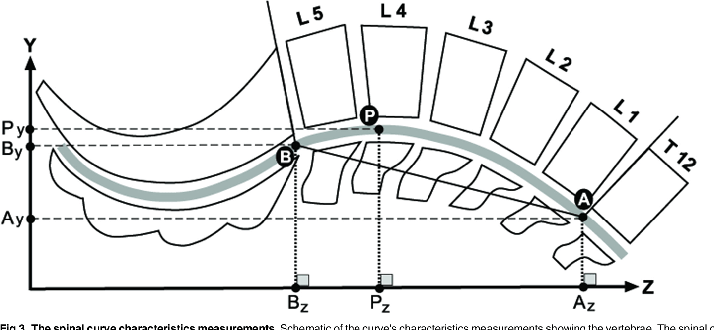 hight resolution of the spinal curve characteristics measurements schematic of the curve s characteristics measurements showing