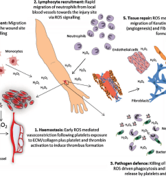 figure 1 reactive oxygen species ros and its role in wound healing the [ 1340 x 934 Pixel ]