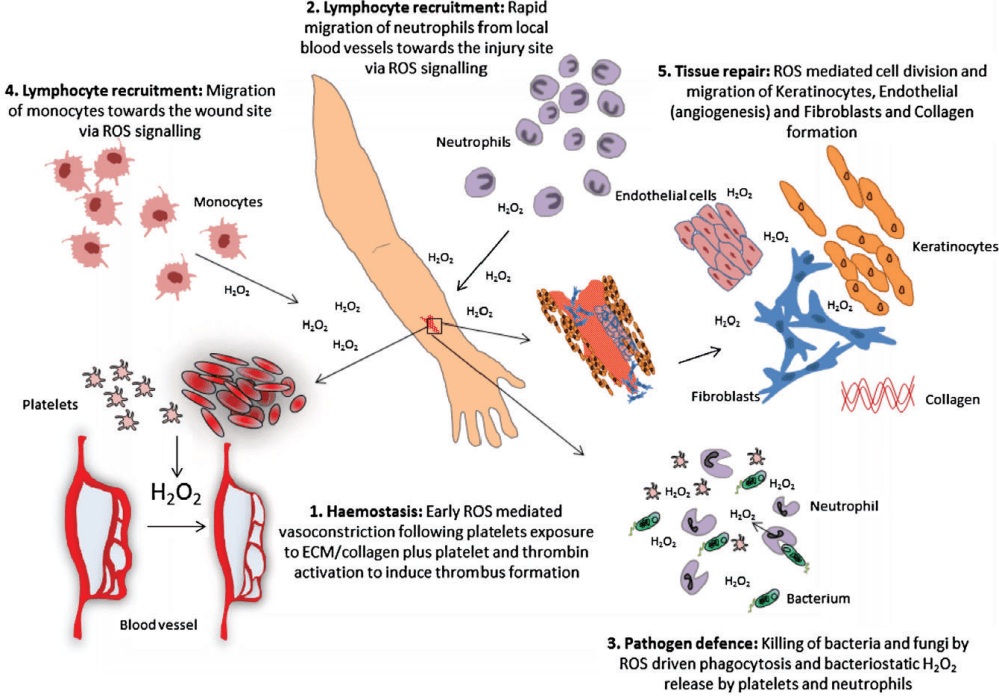 medium resolution of figure 1 reactive oxygen species ros and its role in wound healing the