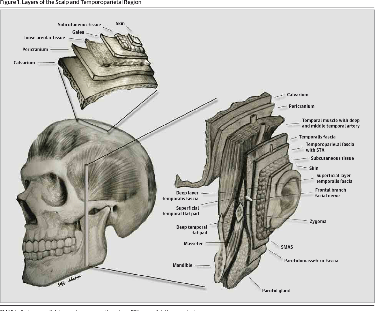 hight resolution of layers of the scalp and temporoparietal region