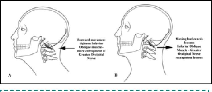Figure 4 from Suboccipital Decompression For Occipital