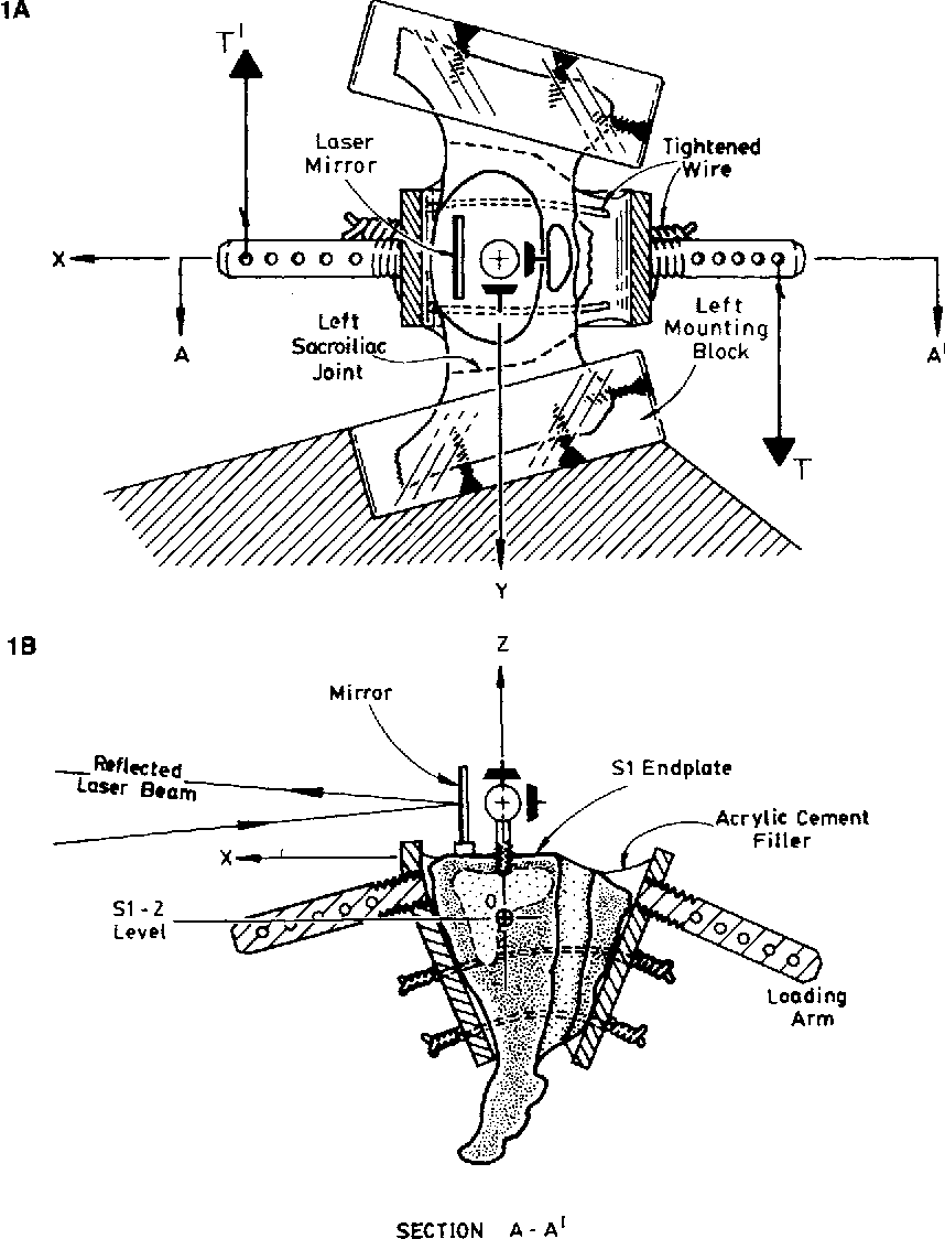 Figure 1 from Load-displacement behavior of sacroiliac