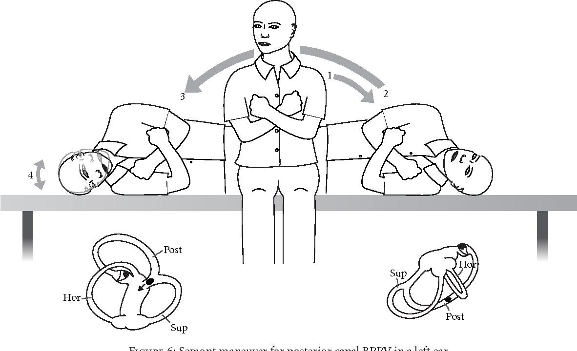 Figure 6 from Benign Paroxysmal Positional Vertigo (BPPV