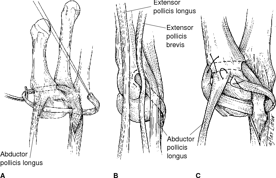 Figure 5 from Basal joint arthritis of the thumb