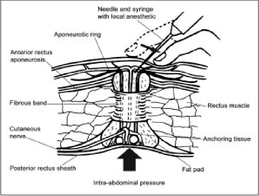 Figure 3 from Abdominal Cutaneous Nerve Entrapment
