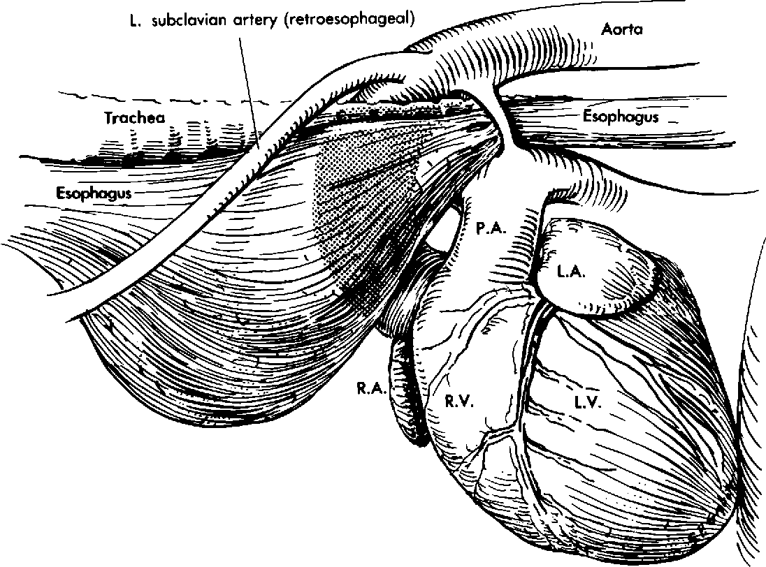 Figure 3 from Tracheal signs and associated vascular