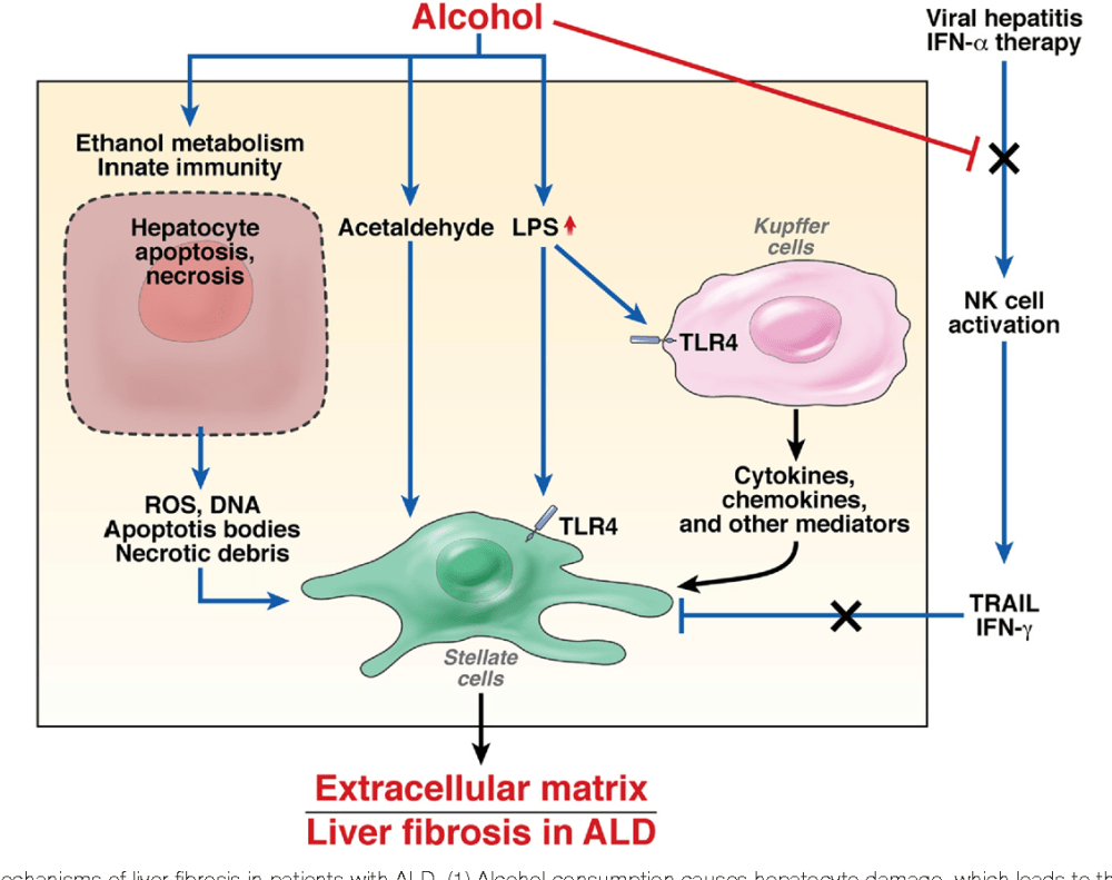 medium resolution of mechanisms of liver fibrosis in patients with ald 1 alcohol