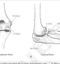 a elbow ossification centers and typical age of closure anteroposterior view [ 1366 x 822 Pixel ]