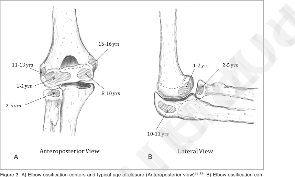 medium resolution of a elbow ossification centers and typical age of closure anteroposterior view