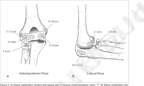 small resolution of a elbow ossification centers and typical age of closure anteroposterior view