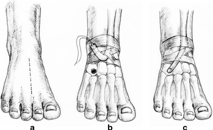 Figure 1 from The split anterior tibialis tendon transfer