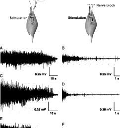 surface electromyography emg during cramps elicited in the intact condition  [ 884 x 1256 Pixel ]
