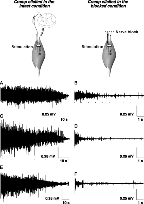 small resolution of surface electromyography emg during cramps elicited in the intact condition