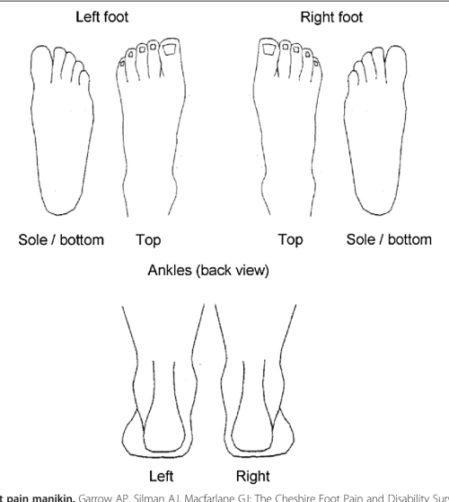 small resolution of figure 1 the blank foot pain manikin garrow ap silman aj macfarlane assessing