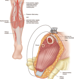 schematic of the posterior myocutaneous flap design  [ 1066 x 1306 Pixel ]