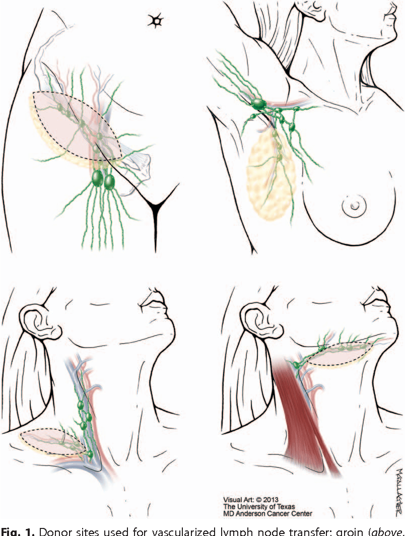medium resolution of overview of lymph node transfer for lymphedema treatment semantic
