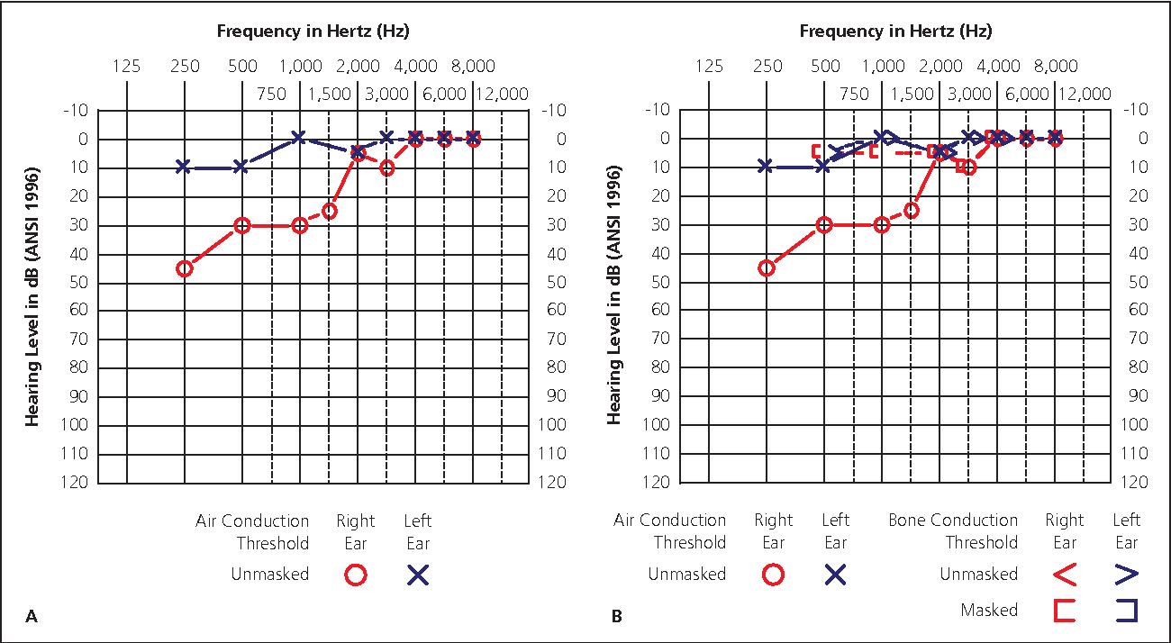 Figure 2 from Audiometry screening and interpretation