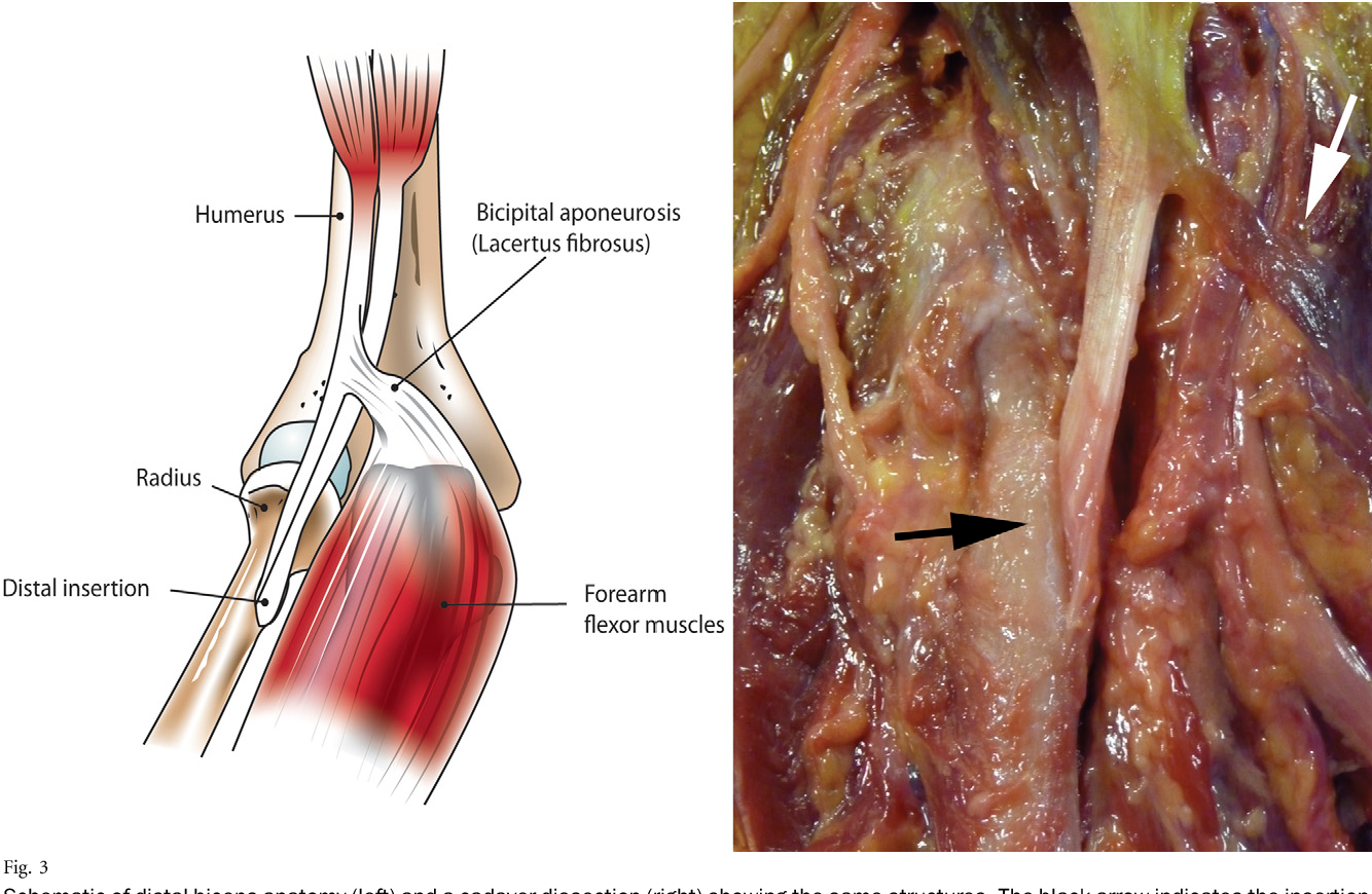 hight resolution of 3 schematic of distal biceps anatomy left and a cadaver dissection