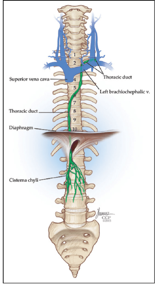 small resolution of thoracic duct injury following cervical spine surgery a multicenter retrospective review semantic scholar