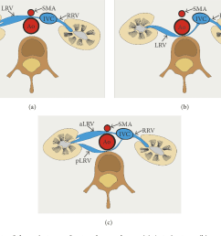 figure 1 schematic arrangements of the main types of nutcracker syndrome a  [ 1020 x 776 Pixel ]