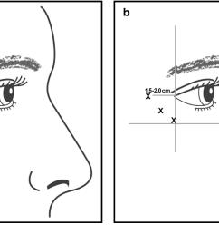 figure 1 [ 1218 x 708 Pixel ]