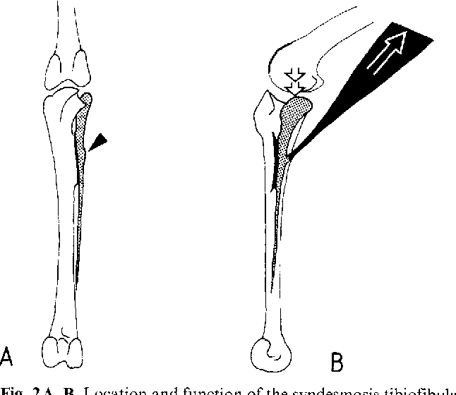 Figure 2 from Ontogeny of the syndesmosis tibiofibularis
