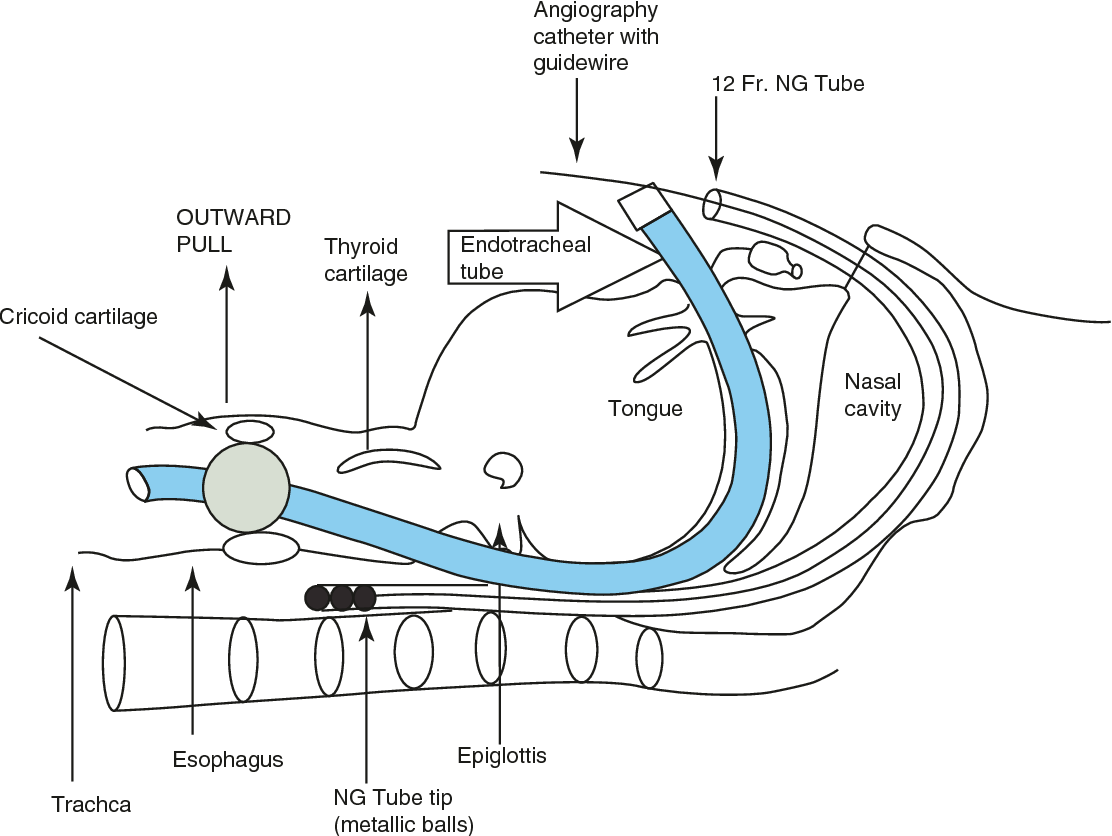 Figure 17.5 from Dysphagia Management in Head and Neck