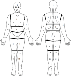 diagram of body segmented into regions for assessment of pain  [ 1198 x 1272 Pixel ]